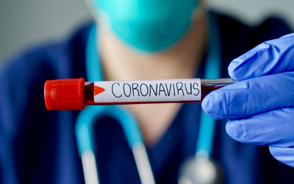 Coronavirus: new study addresses role of timely and effective national health surveillance